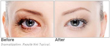 Revitol Eye Cream Results